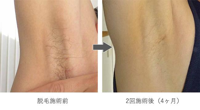 脱毛後の変化